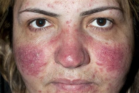 does acne cause redness of the face picture 1