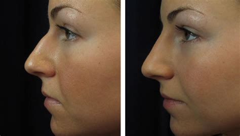 home laser hair removal picture 10