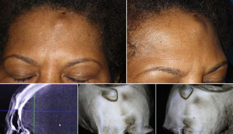 growth on face under skin picture 10