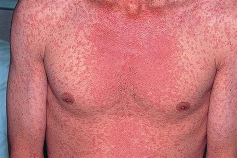 rosacea and skin cancer picture 14