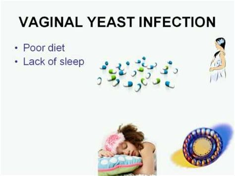 yeast infections odors picture 7