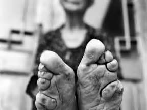 girl feet growth stories picture 5