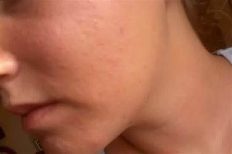 fleshy plugs in face under skin picture 9