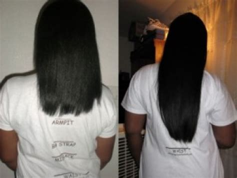 what causes hair to bald after a relaxer picture 5