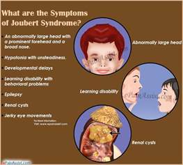 symptoms of cleft lip picture 13