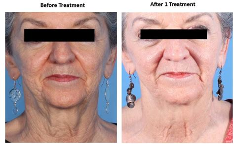 acne treatment laser picture 15