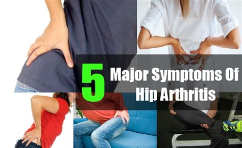 treatment for early arthritis of the knee joint picture 11