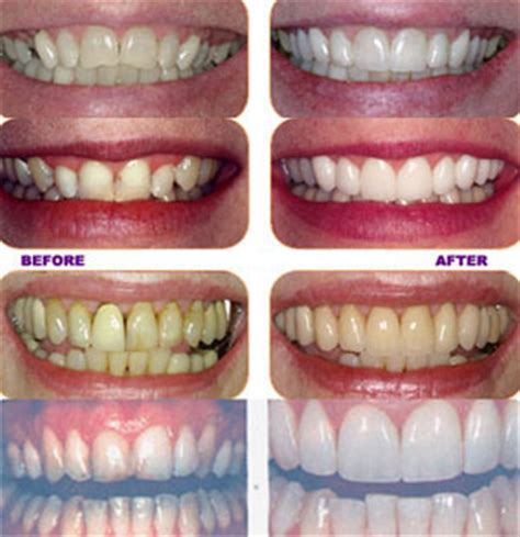 how to whiten teeth at home picture 2