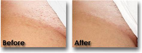 cost of laser hair removal picture 2