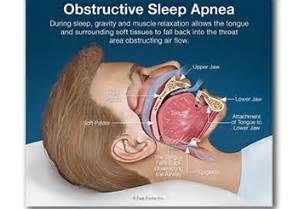 can sleep apnea lead to bad breath picture 7