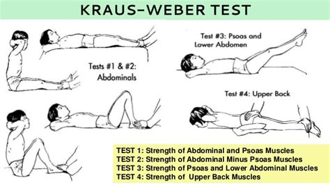 Muscle strength test picture 1