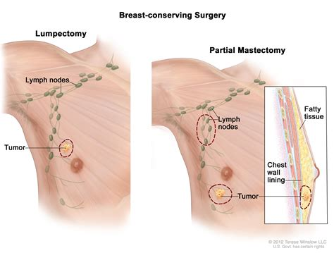 do liquid cists in breast dissolve picture 11