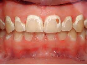 how are weeks spots in teeth fixed picture 13