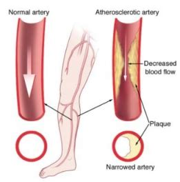 clogged veins in legs of diabetics picture 10