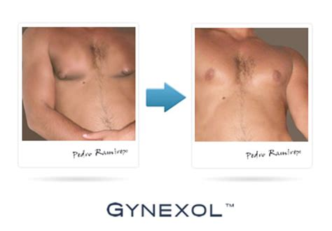 does femminex breast reduction pills work picture 10