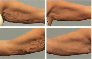 reducing abdominal fat and stretch marks picture 9