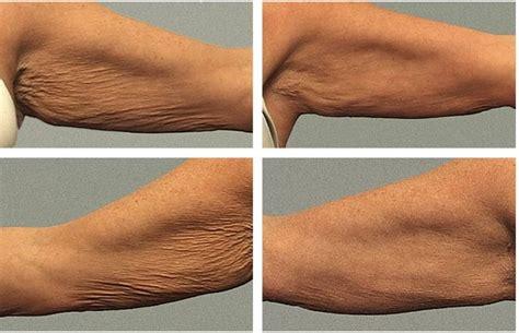 black neck under arm ki treatment by dr picture 3