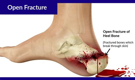 effects of bone fracture on circulation picture 10