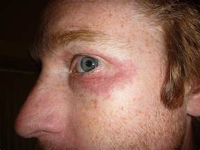 mild burning head of penis herpes picture 9