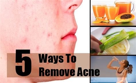 Vitamines to fight acne picture 11