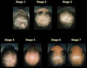 do men loss pubic hair with age picture 11