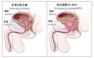 Prostate nodule picture 10