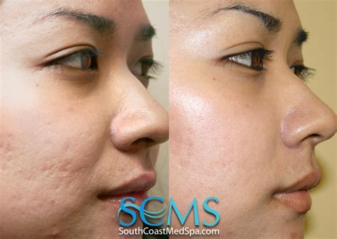 laser acne removal picture 1