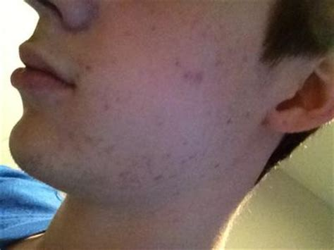 chin jawline acne picture 10