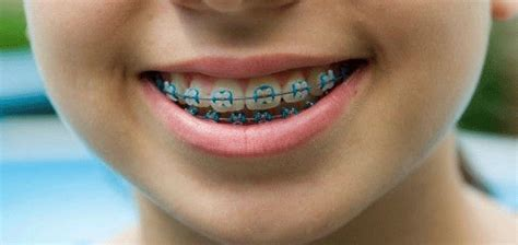 childrens braces for teeth picture 9
