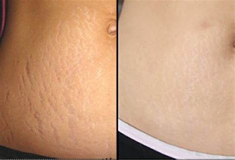 revitol stretch marks blogs picture 6