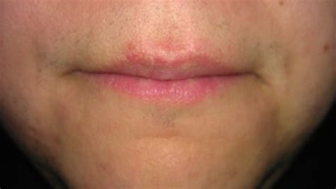 brown marks above my lips picture 2