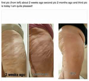 can you get rid of cellulite picture 11