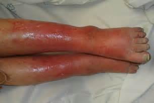 cellulitees com picture 5