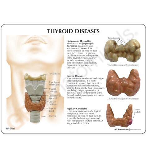 thyroid m picture 7