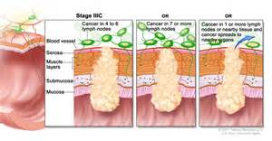 treatment for colon cancer if spread to one lymph node picture 1