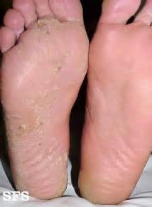 dry itchy split foot skin picture 15