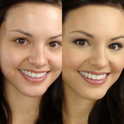 cover up acne with makeup picture 14