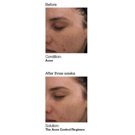 acne ling tukwila wa picture 2