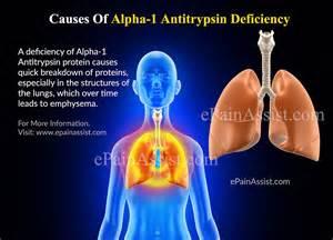 alpha 1 tripton liver disease picture 17