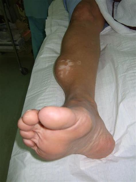 lump in leg muscle picture 1