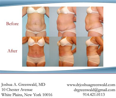 weight loss after tummy tuck picture 1
