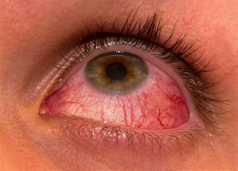 clostridium and liver damage picture 9