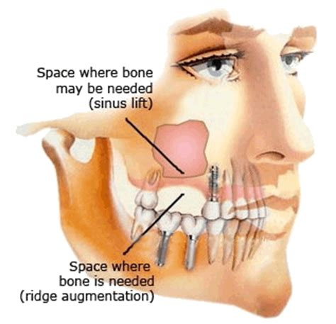 can wisdom teeth cause problems with the sinus picture 6