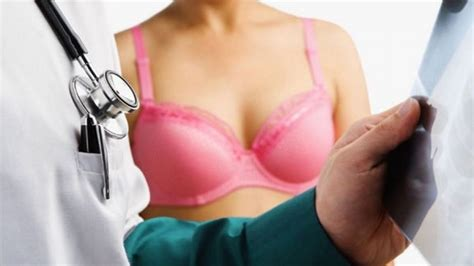 does herbex reduce breast picture 6