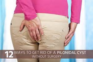 will oil of oregano help pilonidal cysts picture 2