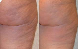 cellulite before picture 2