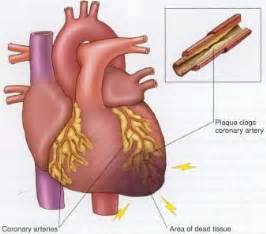 diet and arteriosclerotic heart disease picture 13
