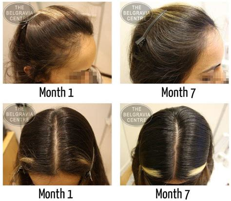 treatment for womens hair loss picture 2