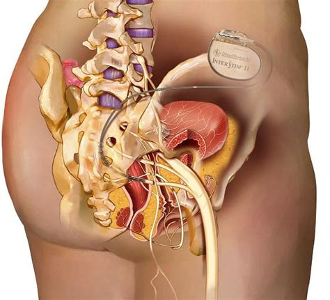 overactive bladder and abdominal pain picture 6
