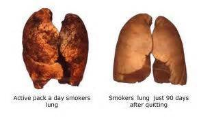 cilia regrowth after quit smoking picture 2